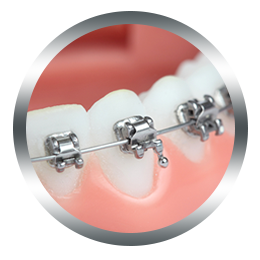 evernew-brackets2