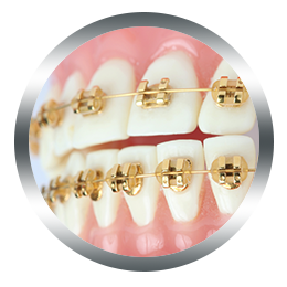 evernew-gold-brackets